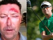 Is Robert Allenby Going too far to Hide his Masturbation Addiction?